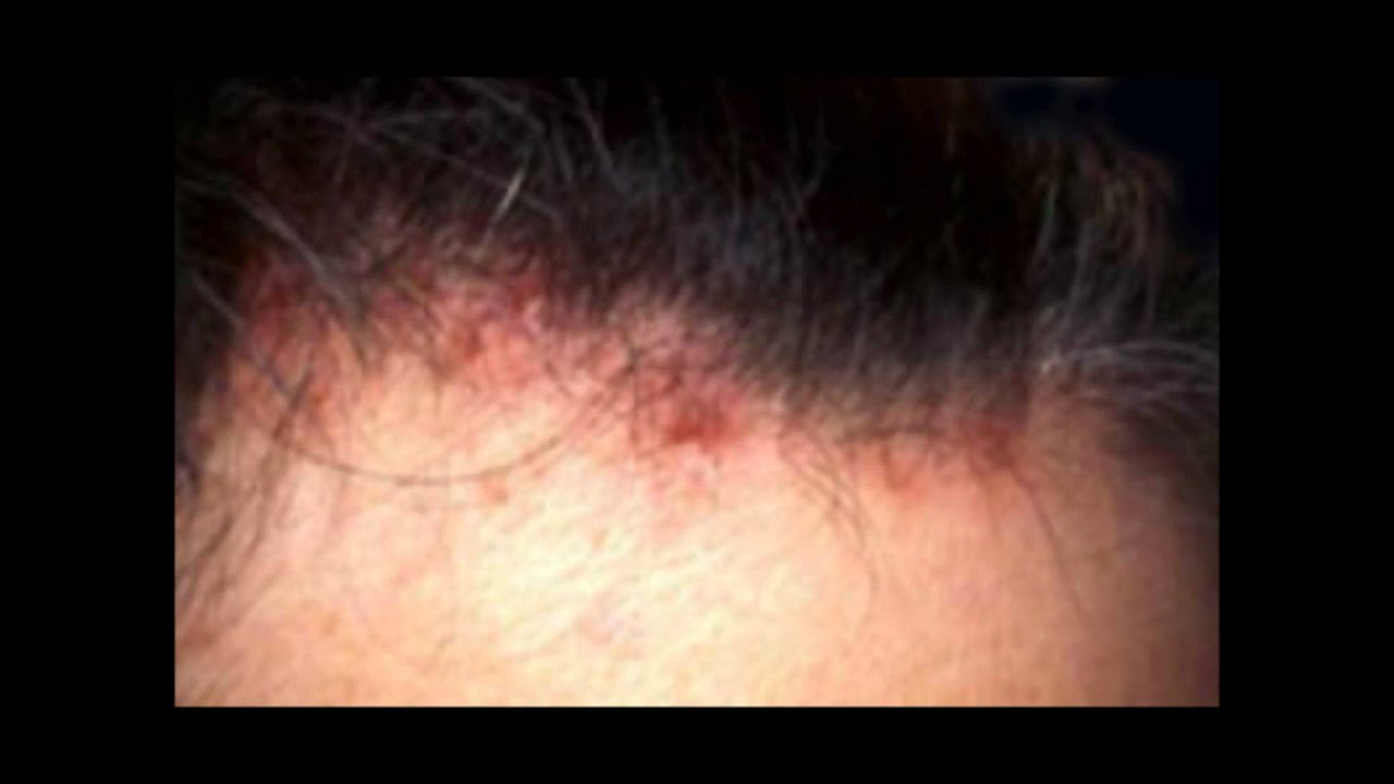 Acne In Hair >> Scalp Acne Causes Scalp Acne Treatment Prevention And Help Youtube