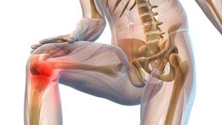 Последнее время очень болят колени. ВЫХОД.(Последнее время очень болят колени. ВЫХОД. Мы поможем Вам: http://goo.gl/cH1Ulu Сильные боли в ногах, боли..., 2016-02-10T17:33:35.000Z)