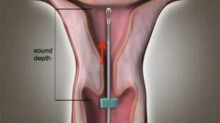 KB Spiral / IUD Saat Pemasangan dan Pelepasan