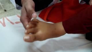 Ankle Clonus | How to Examine Ankle Clonus | Clinical Method