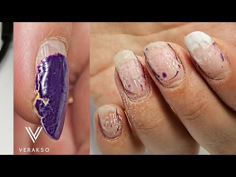Ремонт ногтей )Трещины на ногтях. Простой дизайн