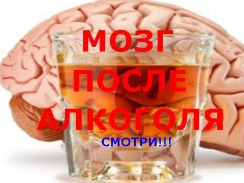 Мозг человека после употребления алкоголя.Смотри!!!