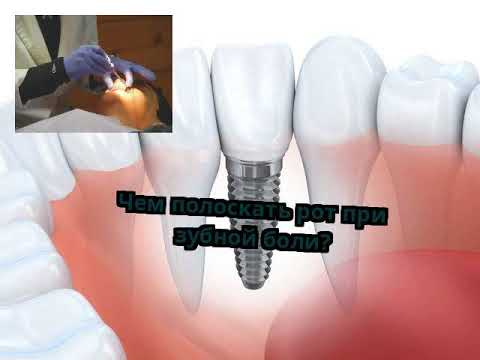 Чем полоскать рот болит зуб