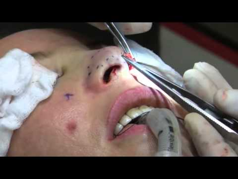 Rhinoplasty (Nose Job) Surgery in 10 Minutes - 2nd Closed Rhinoplasty Video