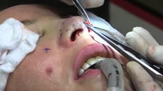 Rhinoplasty (Nose Job) Surgery in 10 Minutes - 2nd Closed Rhinoplasty Video