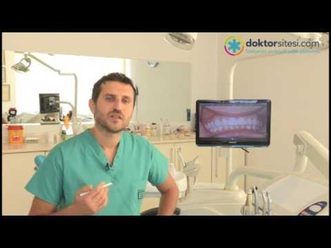 Hiç dişi olmayan hastalara protez diş uygulanabilir mi?