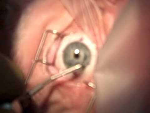 Intacs, keratoconus, CK, CXL, Cross Linking