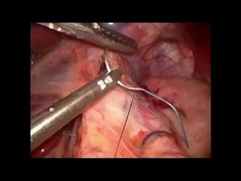 LIVE Gastric Sleeve Operation by David Oliak, MD