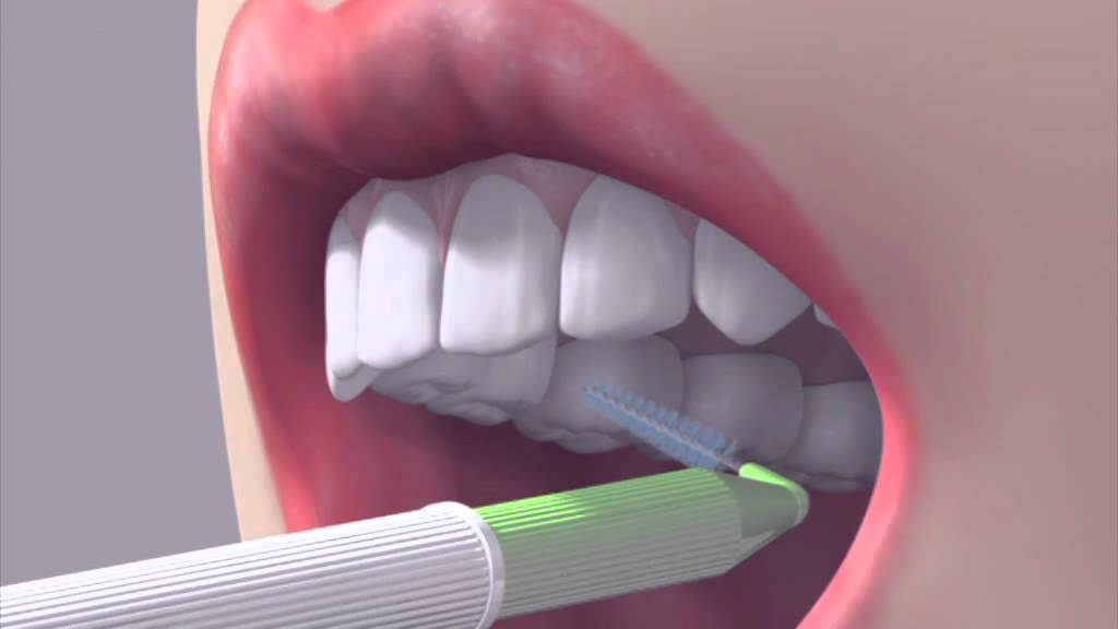 How to use an interdental brush - YouTube