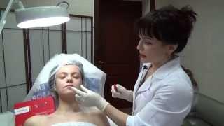 «Улыбка Мона Лизы» — подъем опущенных уголков рта за 1 процедуру