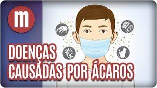 Doenças causadas por ácaros - Mulheres (09/08/17)