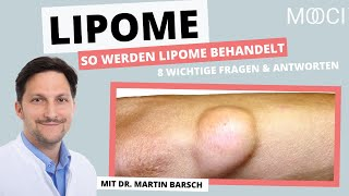 Wie kann ich Lipom behandeln? | 8 Fragen an Dr. med. Martin Barsch | MOOCI