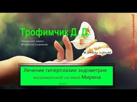Лечение гиперплазии эндометрия. Мирена. Фильм 3.