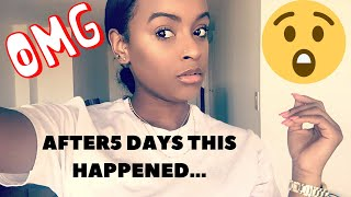 Gambar cover How To Get Clear Glowing Skin In 5 Days: DIY ACV TONER!