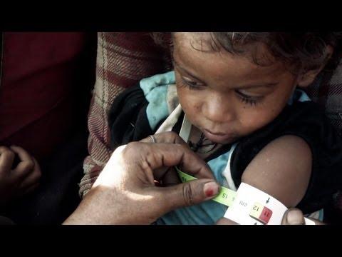 Ending chronic malnutrition in Nepal