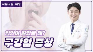 [흡연자 필수시청] 혀 혹은 입안에 통증이 느껴진다면 …