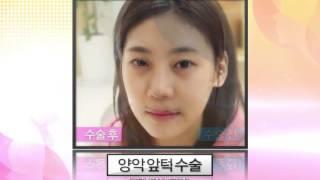 황금비성형외과 홍보영상^^