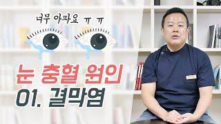 눈 충혈 원인 01. 결막염, 알레르기 결막염 vs 유…