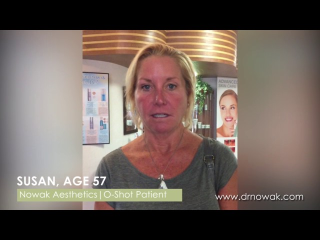 O Shot Testimonial - Susan | Nowak Aesthetics, Chula Vista