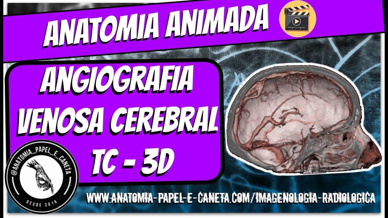 Atractivo Anatomía Del Nervio Craneal Mri Fotos - Imágenes de ...