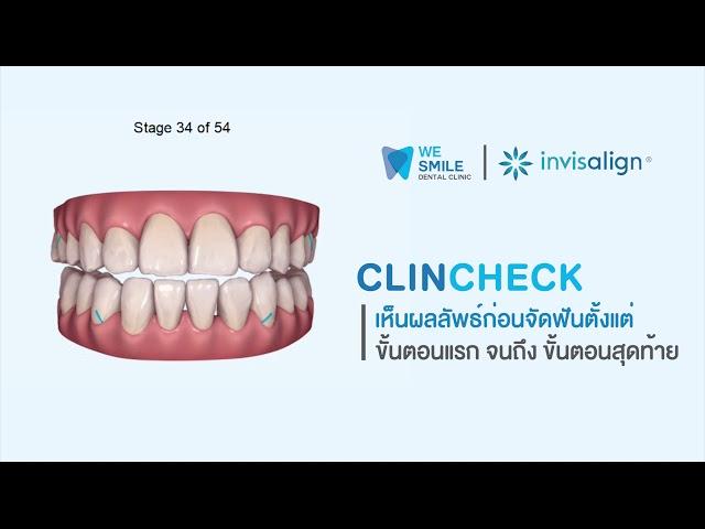 PINE MARKETING x WESMILE : ClinCheck