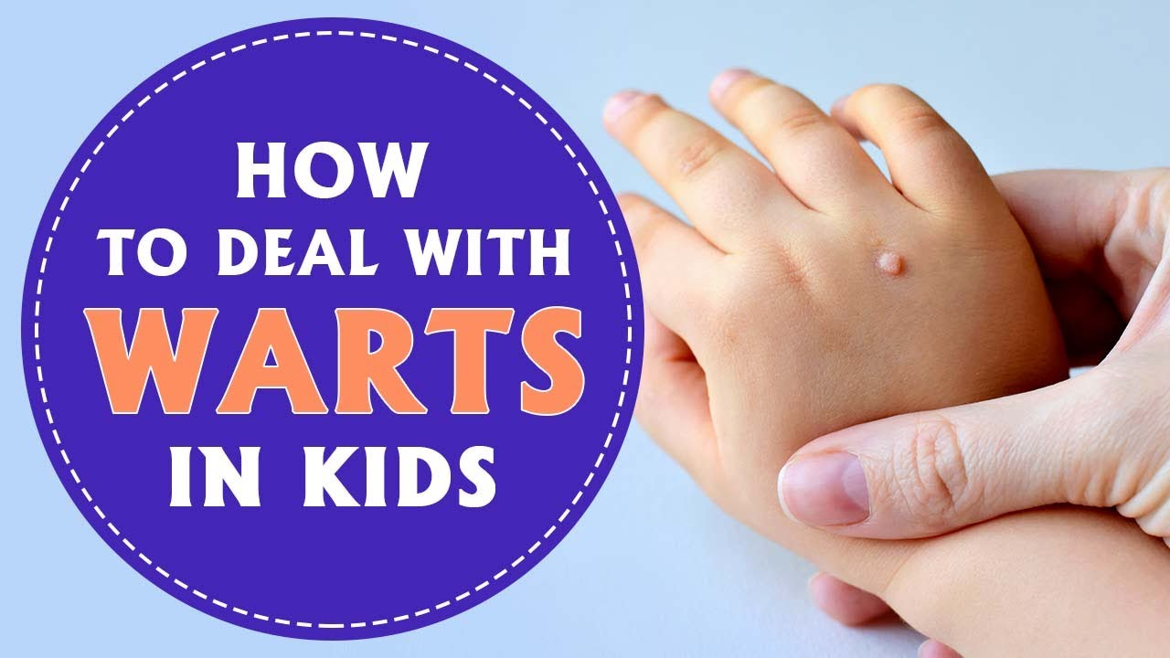 Warts in Kids: Reasons, Signs & Home Remedies