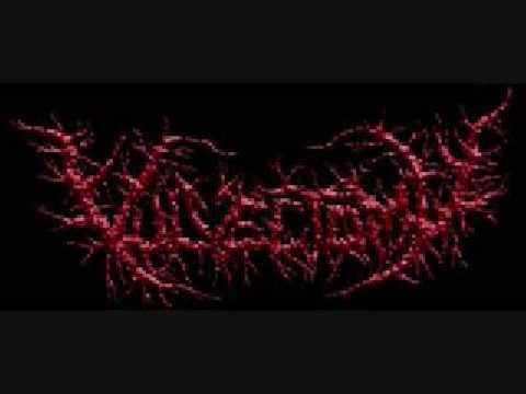Vulvectomy - Regurgitation Of Menstrual Scabs