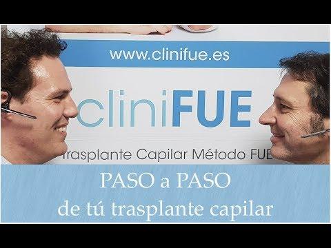 cliniFUE: Paso a paso de tu trasplante capilar en Turquía