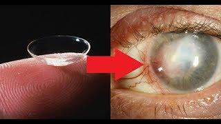 ★ Чтобы избежать КЕРАТИТА, контактные линзы необходимо снимать перед сном.Офтальмологи