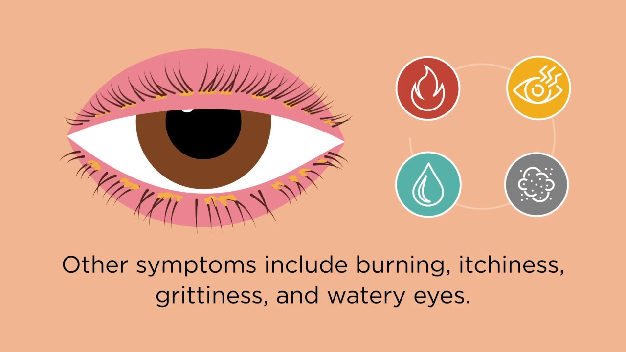 Blepharitis: Causes, Treatment of Eyelid Inflammation