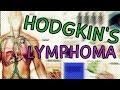 Hodgkin's Lymphoma - Types - Symptoms - Staging - Treatment - Diagnosis  Hodgkins Lymphoma Explained
