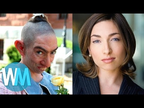 Top 10 Ugly Characters You Won't Believe Are Hot IRL