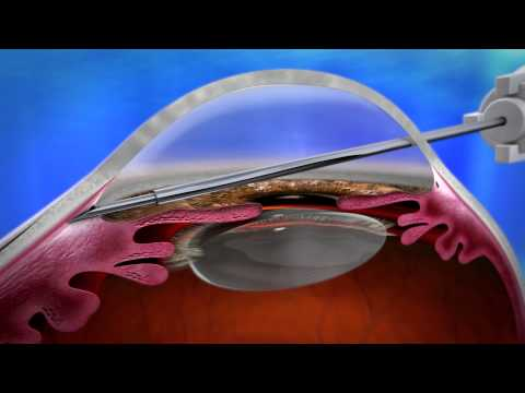 XEN Aquesy - Gel Stent -  The London Ophthalmology Centre