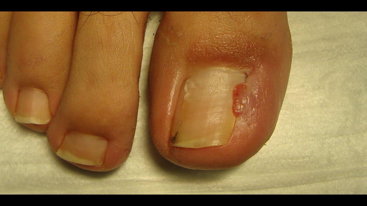 палец без ногтя фото