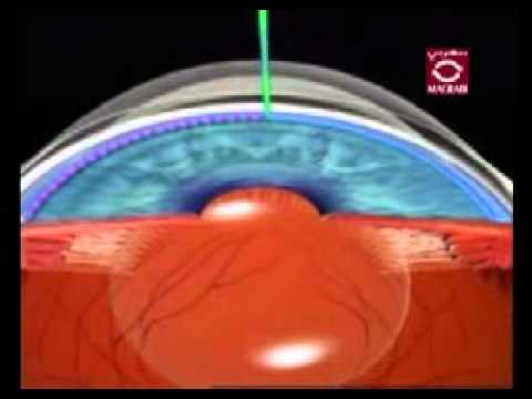 glaucoma the causes effects and treatment of the debilitating disease Glaucoma is a group of related eye disorders that cause damage to the optic nerve that carries information from the eye to the brain in its early stages, glaucoma usually has no symptoms, which is what makes it so dangerous — by the time you notice problems with your sight, the disease has.