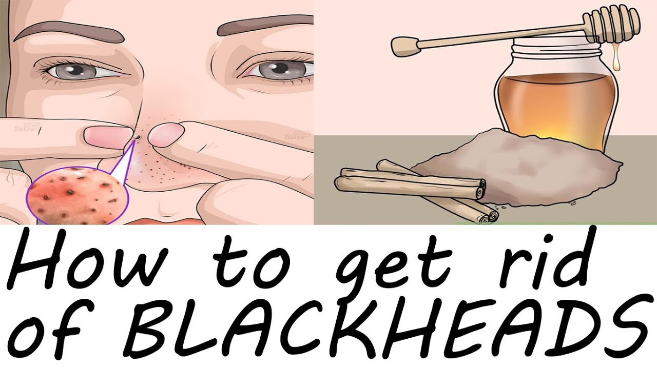How to get rid of blackheads fast with oatmeal