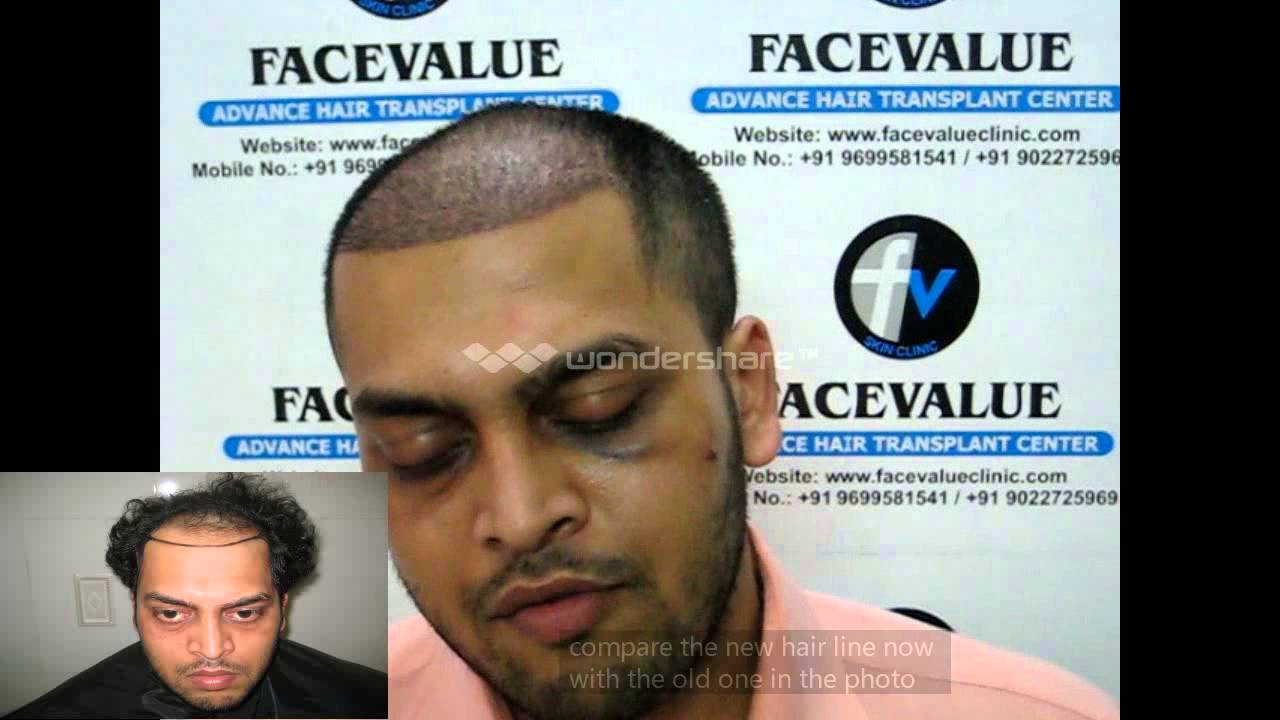Before and after hair transplant fue mumbai india kolkatasolan before and after hair transplant fue mumbai india kolkatasolan hpsatnamp youtube pmusecretfo Gallery
