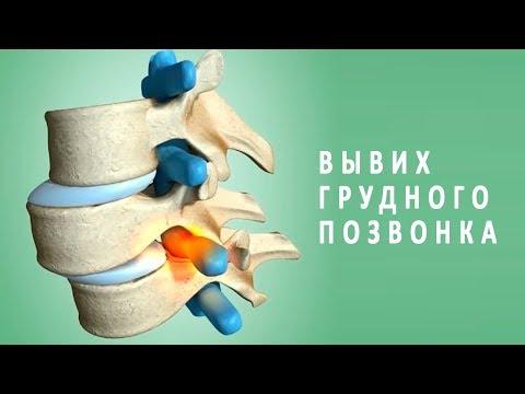 Симптомы и лечение вывиха грудного позвонка