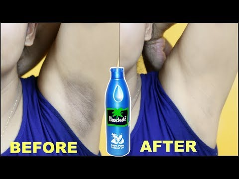 In Just 5 Minutes Whiten Your Underarms || Natural Health Tips