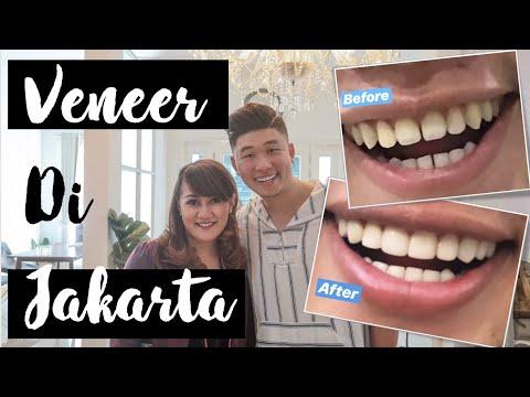 Veneer Jakarta | GIGI PUTIH, RAPIH , BERSIH dalam 1JAM