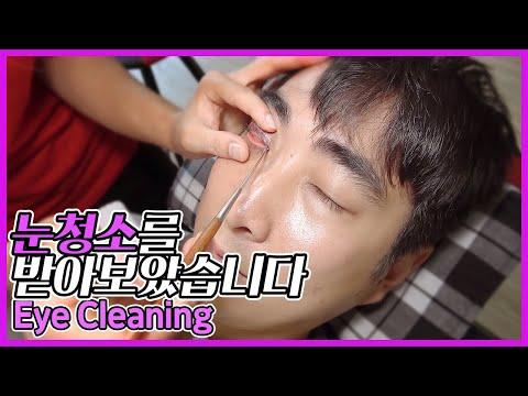 [EYE CLEANING] 제가 눈청소 받아보았습니다 Eye Cleaning Vietnam Services (dịch vụ vệ sinh mắt danang việt nam)