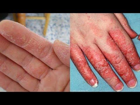 5-best-ways-to-make-oatmeal-bath-for-eczema