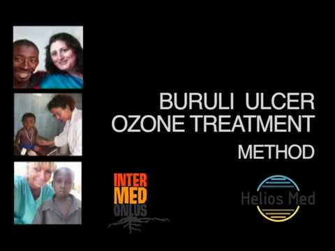 Neglette Disease  BURULI ULCER OZONE TREATMENT METHOD PARI Protocol - Method