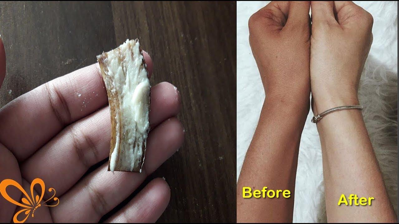 That peeling skin vagina useful topic