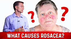 hqdefault - Underlying Cause Of Acne In Rosacea