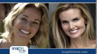 Madison Ave. NYC Cosmetic Dentist Offers Snap-On Smile Thumbnail