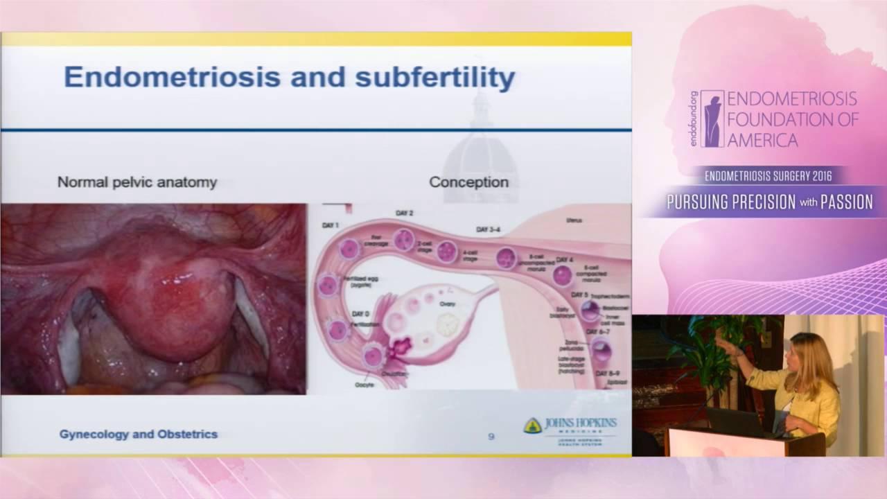 Kristin Patzkowsky, MD - Endometriomas and fertility - YouTube