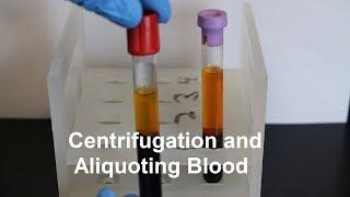 Centrifugation and Aliquoting of Blood Serum and Plasma