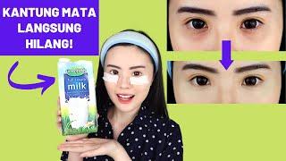 Download lagu 5 Cara Menghilangkan Kantung Mata/Mata Panda Secara Instan & Alami (TERBUKTI AMPUH)