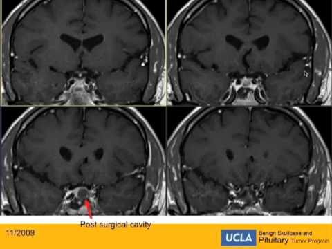 Missed Acromegaly - Post-Operative Course | UCLA Pituitary Tumor Program
